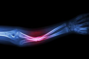 TheMerkle Broken Bone 3D Cast