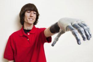 TheMerkle prosthetic Hand
