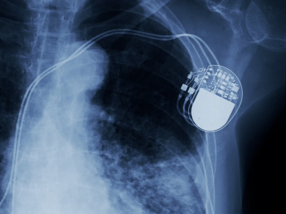 TheMerkle Pacemaker Vulnerabilities