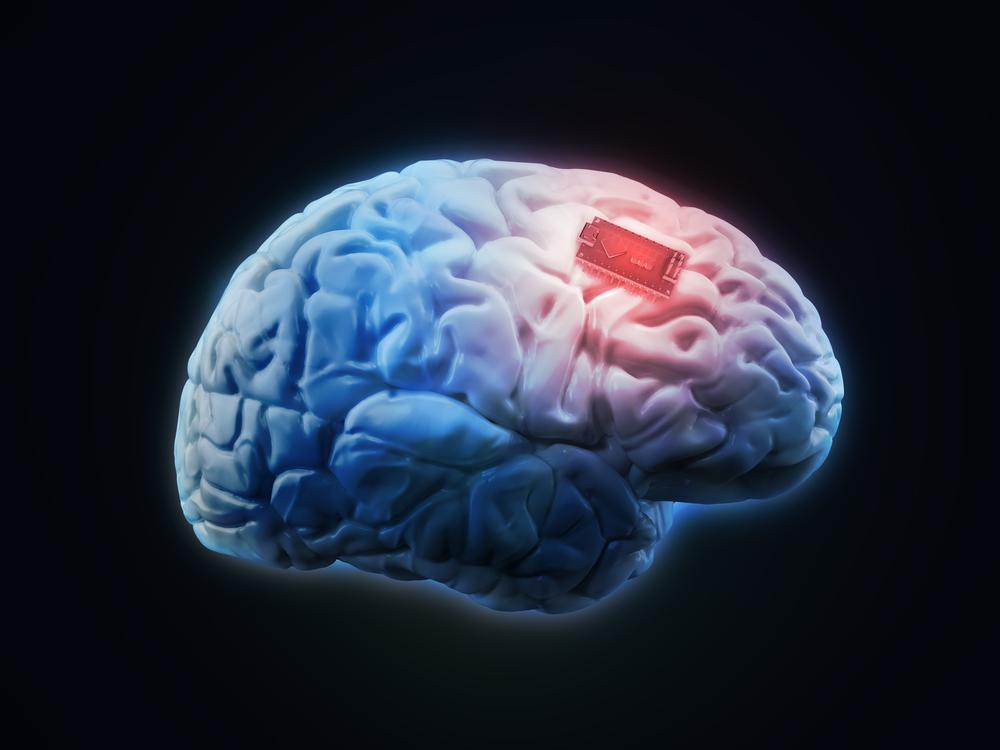 TheMerkle DARPA Brain Implant